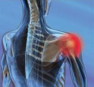 Bolečina v ramenu