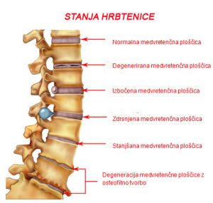 Protruzija diska in ostale okvare hrbtenice